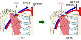 小胸筋下方圧迫