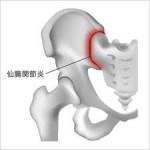 お尻の付け根が痛い!仙腸関節障害について。