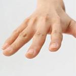 何となくを解消しましょう! 指の捻挫と突き指は違うもの?